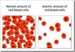 Best Natural Remedies For Anemia, All  Natural Remedies For Anemia